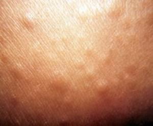 skleromix