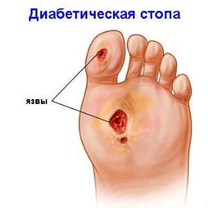 Классификация и лечение диабетической гангрены стопы
