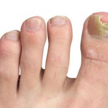 Проявления и лечение эпидермофитии ногтей