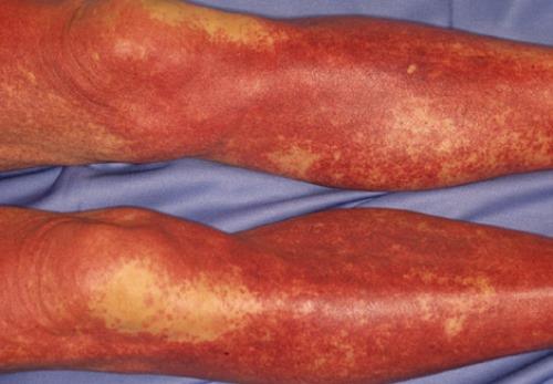 Dermatology Image by Yasusi Suzumura