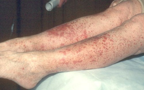 Воспаление сосудов ног - симптомы и лечение