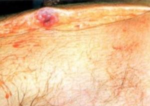 plazmocit