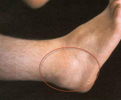 Изображение - Теносиновит голеностопного сустава лечение tenosin-gs
