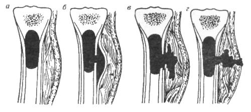 gemat-osteom