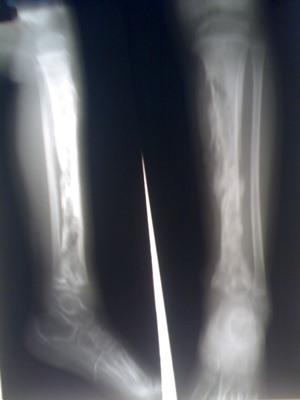 gemat-osteom2