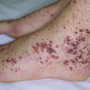 Тромбоцитопеническая пурпура у взрослых - классификация, симптомы и лечение