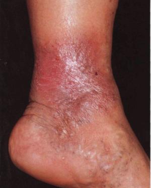 Симптомы и лечение варикозной экземы нижних конечностей