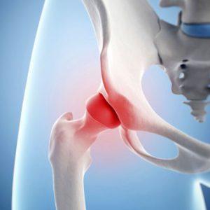 Изображение - Отложение солей в тазобедренном суставе лечение burs-ts2-300x300