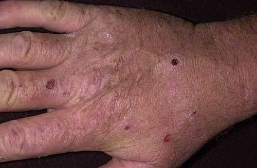 Кожная порфирия - симптомы и лечение