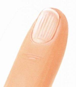 Рифленые ногти - причины развития и лечение