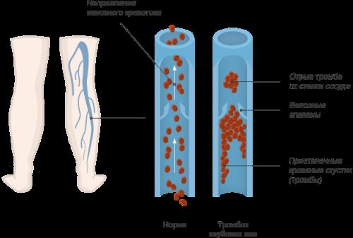 Тромбоз глубоких вен нижних конечностей - симптомы и лечение