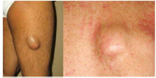 Жировик на ноге причины появления и лечение