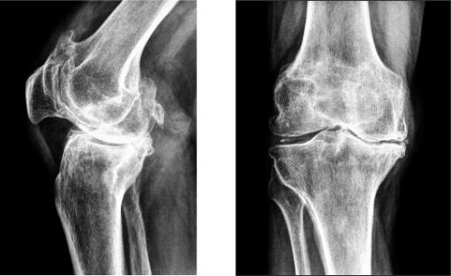Дефартроз коленного сустава конский щавель для лечения коленных суставов