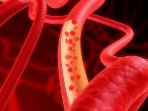 Воспаление стенок сосудов — Cardio