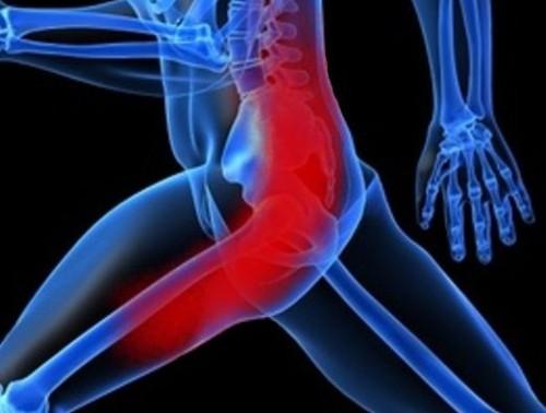 Изображение - Тендиноз тазобедренного сустава симптомы и лечение bol-bedr