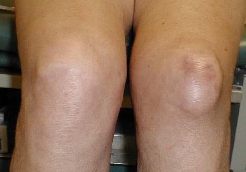 Инфрапателлярный бурсит коленного сустава лечение