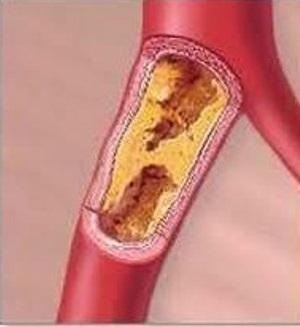 Склероз сосудов нижних конечностей