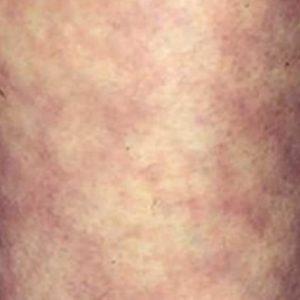 Пятнистая кожа у человека