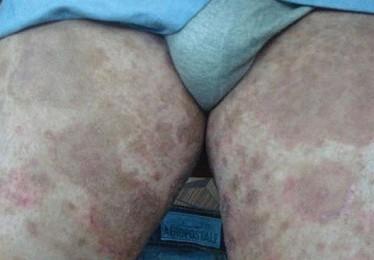 Проявления и терапия паховой эпидермофитии
