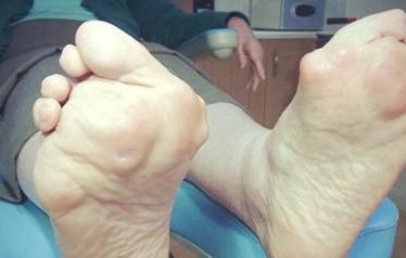 Симптомы и лечение ревматоидного артрита стопы