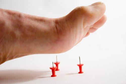 Острая боль в стопе без травмы