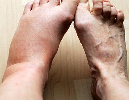 После перелома лодыжки отекает нога - что делать?