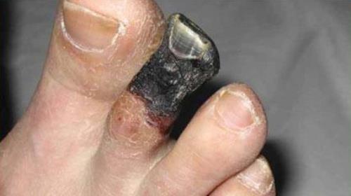 Сухая гангрена пальца ноги