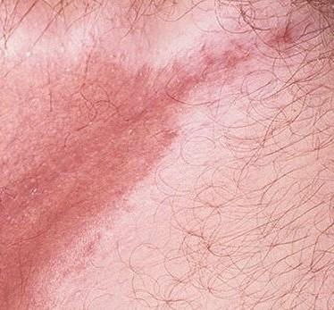 Проявления и лечение паховой эритразмы