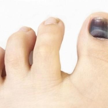 Почему посинел ноготь на большом пальце ноги?
