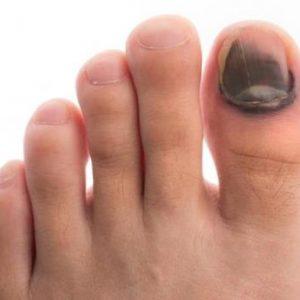 Как отличить ушиб пальца на ноге от перелома и что делать в домашних условиях?