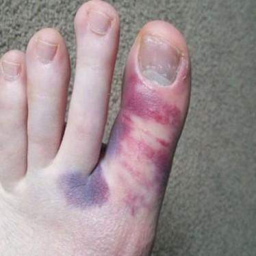 Почему посинел большой палец на ноге и что делать?