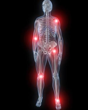 Проявления и терапия ревматизма суставов