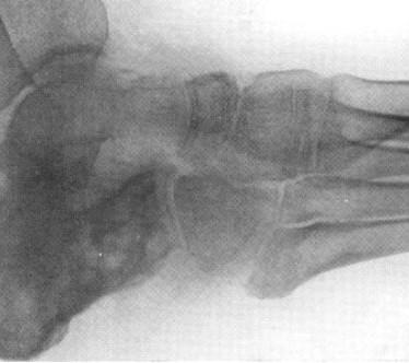 Проявления и терапия туберкулеза пяточной кости