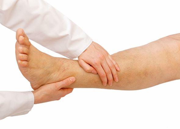 Чешутся ноги ниже колен при варикозе лечение