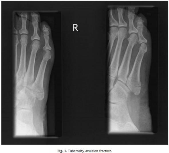 Перелом пятой плюсневой кости стопы сколько заживает реабилитация