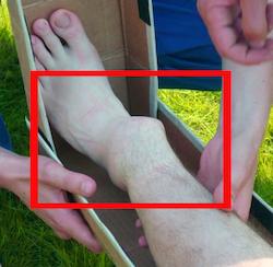 Перелом голеностопного сустава ноги: лечение, ЛФК, последствия