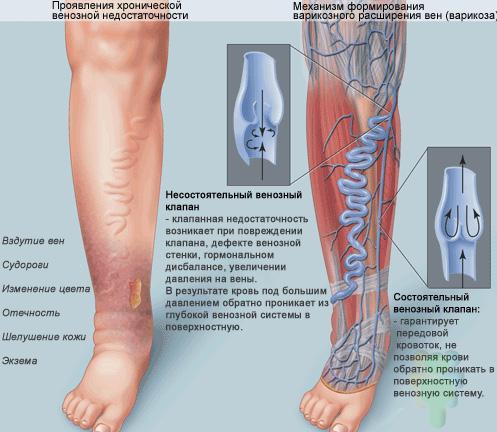 Релиф при геморроидальном тромбозе