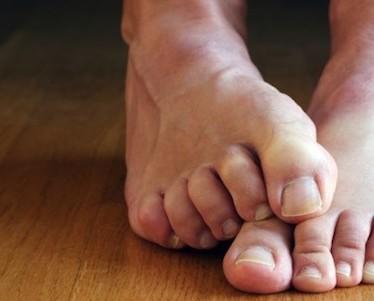 Основные причины онемения нижних конечностей