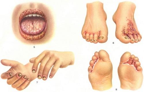 Реклама по телевизору средства от грибка ногтей