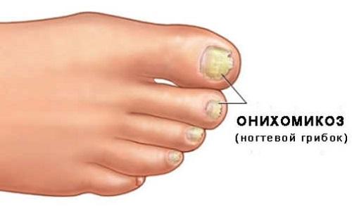 Чем замаскировать грибок ногтей на ногах