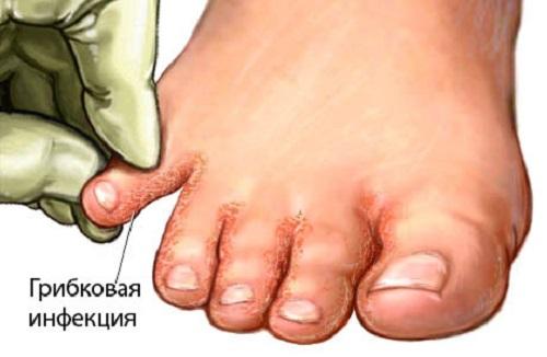 Хорошее лекарство от грибка ногтей на ногах отзывы