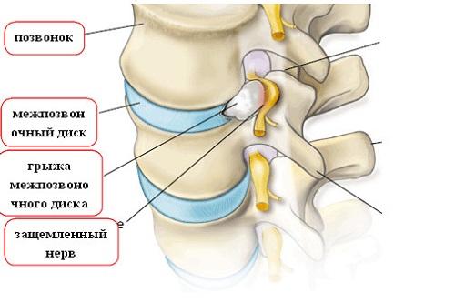 лечение связок мышц народными средствами