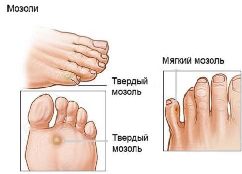 Как вылечить натоптыш на ноге в домашних условиях