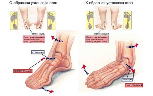 Как лечить плоскостопие (1, 2 и 3 степени)? Причины появления и ...