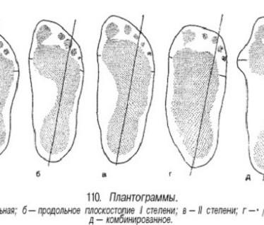 Как определить, есть ли у вас плоскостопие?