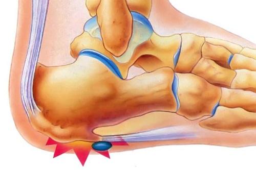 pyat-shpora-simptomy-i-lechenie-1