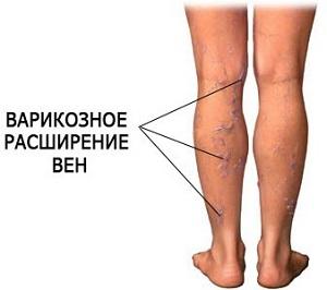 Лечение грыж позвоночника красноярск цена