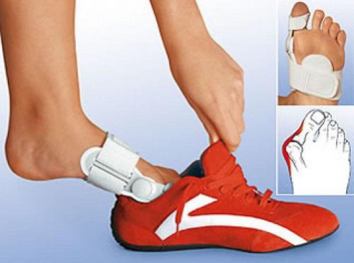 Чем мазать косточки на ногах | Codecademy