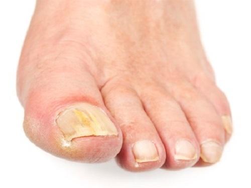 Как определить есть ли грибок на ногтях ног
