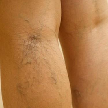 Почему болят и чешутся вены на ногах?
